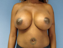 XL Breast Augmentation 600cc Saline