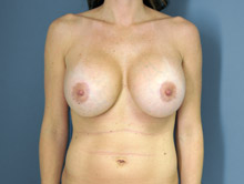 XL Breast Augmentation 800cc HP Silicone
