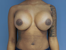 XL Breast Augmentation 600cc HP Silicone
