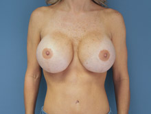 XL Breast Augmentation 825cc Saline