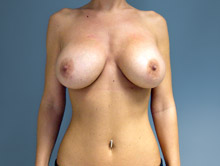 XL Breast Augmentation 650cc Saline