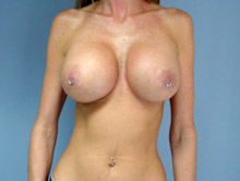 XL Breast Augmentation 700cc Saline
