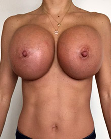 XL Breast Augmentation 1150cc Saline