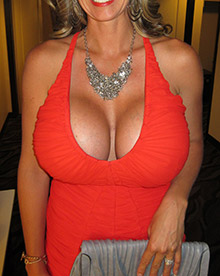 XL Breast Augmentation 1800cc Saline
