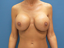 XL Breast Augmentation 950cc Saline