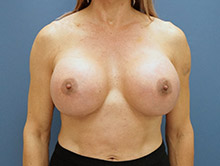 XL Breast Augmentation 1500cc Saline
