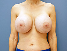XL Breast Augmentation 1900cc Saline