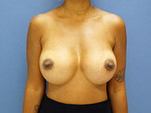 XL Breast Augmentation 700cc HP Silicone