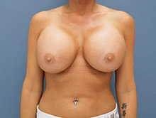XL Breast Augmentation 1200cc Saline