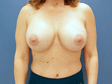 XL Breast Augmentation 650cc HP Silicone