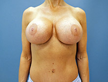 XL Breast Augmentation 650cc HP Xtra Silicone
