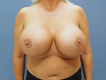 XL Breast Augmentation 1250cc Saline