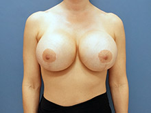 XL Breast Augmentation 1400cc