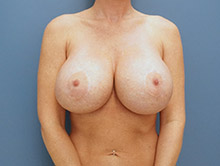 XL Breast Augmentation 1050cc Saline