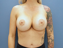 XL Breast Augmentation 700cc UHP Silicone