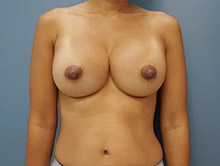 XL Breast Augmentation 650cc UHP Silicone