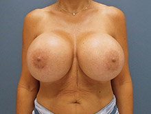 XL Breast Augmentation 1450cc Saline
