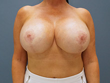 XL Breast Augmentation 800cc Saline
