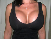XL Breast Augmentation 1000cc Saline
