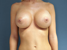 XL Breast Augmentation 750cc Saline