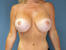 XL Breast Augmentation 750cc HP Silicone