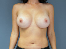 XL Breast Augmentation 600cc MPP Silicone