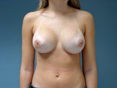 Breast Augmentation: Before and After Photos