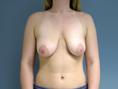 Breast Augmentation with Lift: Before and After Photos