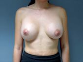 Example of breast implants that are too widely spaced