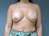 Example of breast implants that are placed too high