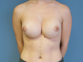 Synmastia Correction: Before and After Photos