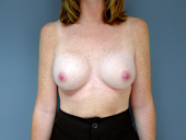 Patient dissatisfied with breast implant size