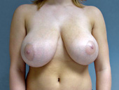 Breast Reduction: Before and After Photos