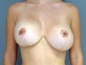 Example of bottoming out breast implant deformity