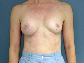 Example of breast implant deflation