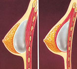 Implant placement in subglandular and submuscular augmentation
