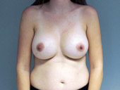 Breast Augmentation: Submuscular Placement 10 Years Post-Op