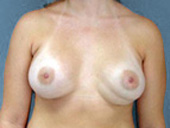 Example of double bubble breast implant deformity