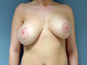 Example of breast implant asymmetry