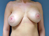 Example of natural breast asymmetry present after augmentation