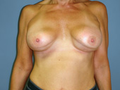 Double bubble breast implant deformity