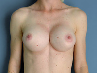 Example of Symnastia (also known as Breadloafing or Uniboob)