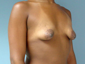 Example of tuberous breasts